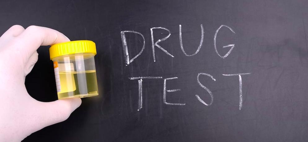 Cos'è e quando si effettua il test antidroga sul lavoro