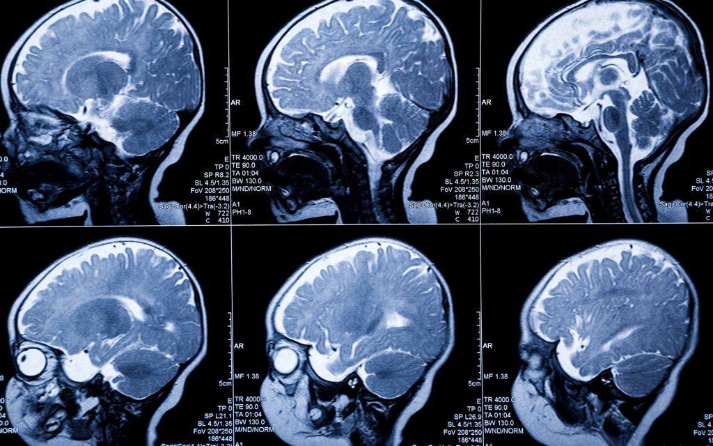 Che effetti ha il THC sull'organismo umano